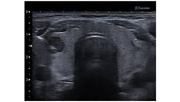 echographie de la thyroide ++